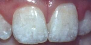 fluorose dental